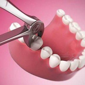 Niềng răng nhổ răng số 6: Trường hợp nào thực hiện, có đau không và những lưu ý