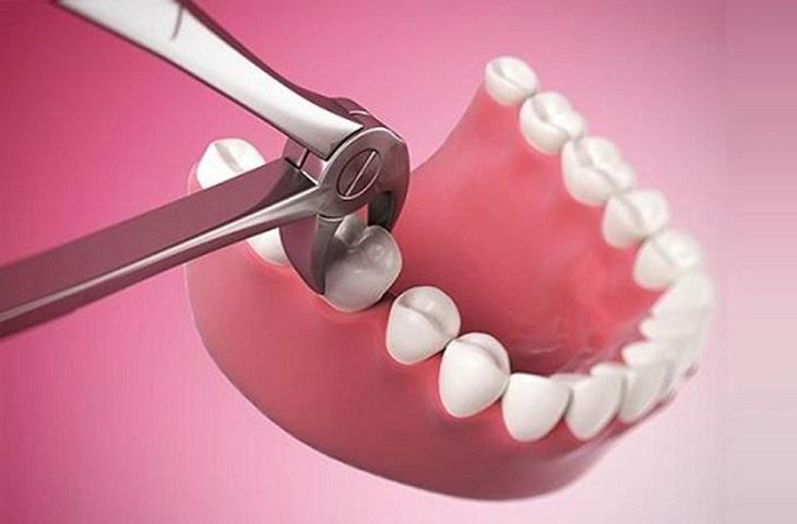 Răng số 6 là răng hàm đóng vai trò rất quan trọng trên cung hàm
