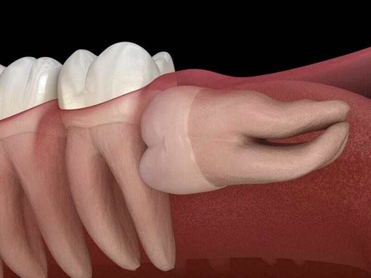 Răng khôn mọc ngầm, mọc lệch cần sớm được nhổ bỏ