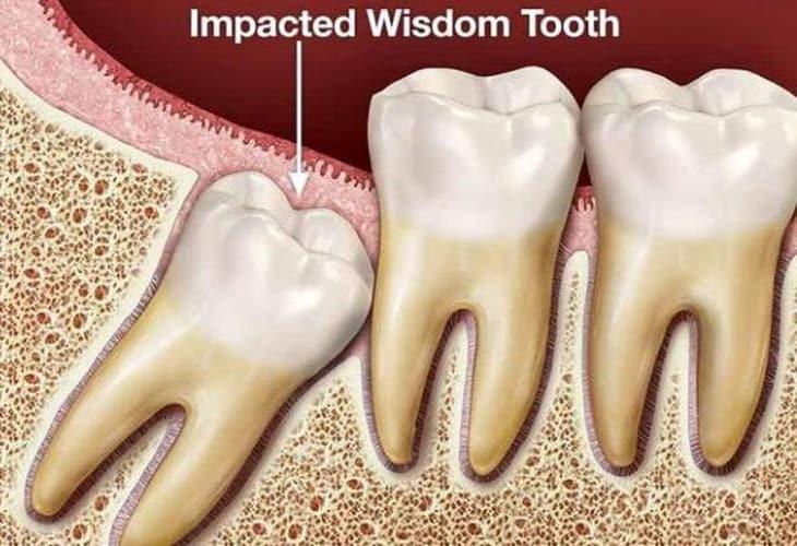 Răng số 8 hay chính là chiếc răng khôn mọc cuối cùng trên cung hàm