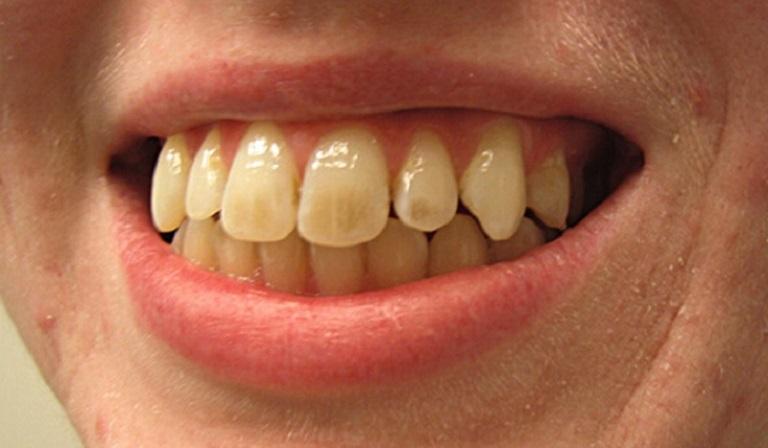 Răng bị ố vàng rất mất thẩm mỹ