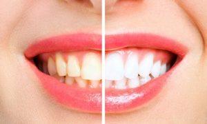 Tẩy trắng răng là một phương pháp phục hình răng trắng sáng