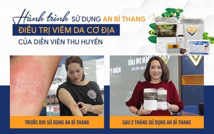 Diễn viên Thu Huyền cải thiện 80% tình trạng viêm da cơ địa sau 1/2 liệu trình An Bì Thang