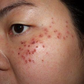 Thuốc chấm tàn nhang: Giải pháp trị tàn nhang hiệu quả cho phái đẹp