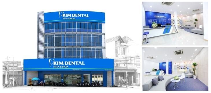 Kim Dental là một trong những địa chỉ cấy ghép răng Implant uy tín, được tin cậy tại TP HCM