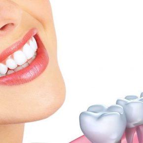 Trồng răng Implant trả góp - Những thông tin quan trọng cần biết