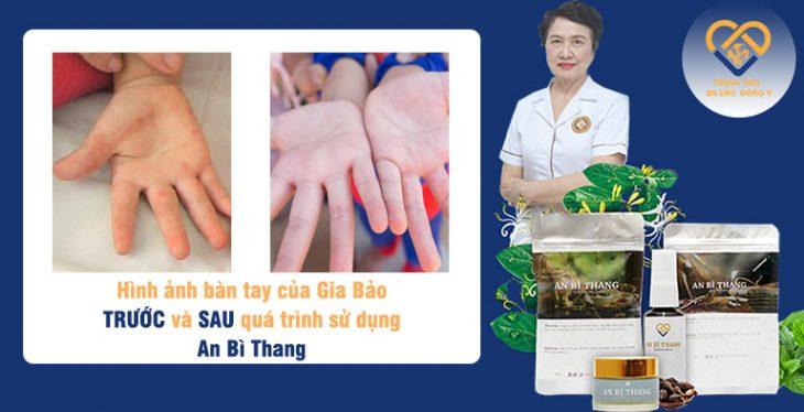 Kết quả điều trị bệnh nhân nhỏ tuổi mắc viêm da cơ địa với bài thuốc An Bì Thang