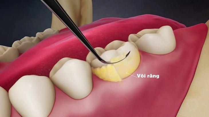 Mảng bám - vôi răng hình thành lâu ngày