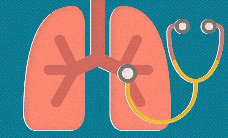 Viêm khớp dạng thấp gây tổn thương phổi