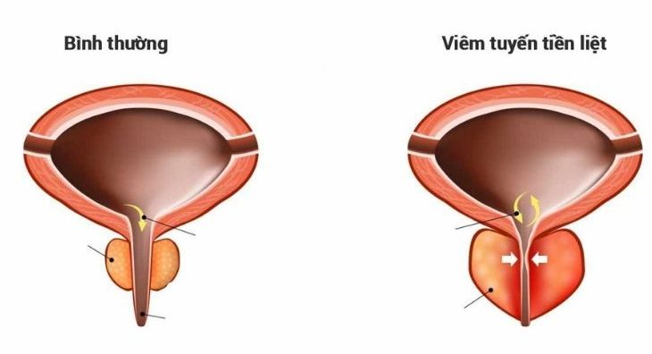 Viêm tiền liệt tuyến là căn bệnh về nam khoa phổ biến