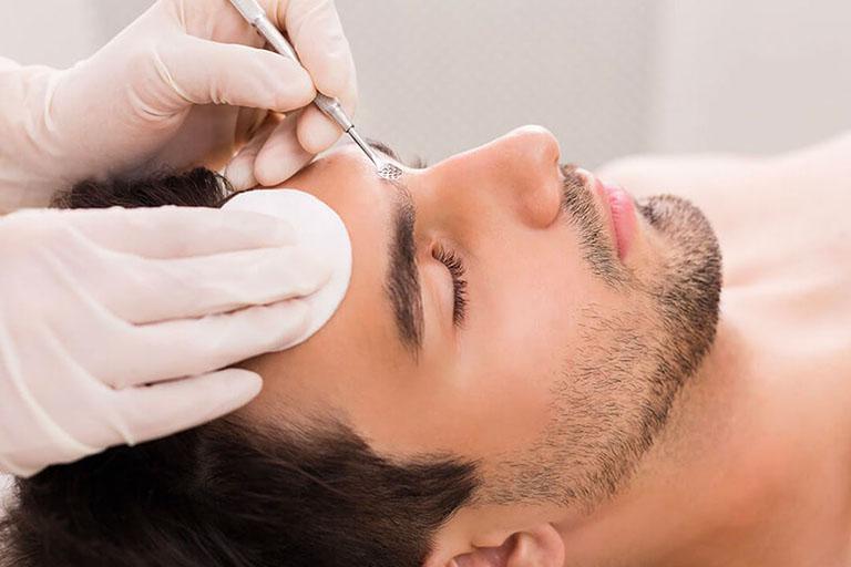 Lấy nhân mụn y khoa để làm sạch lỗ chân lông và tránh viêm nhiễm lan rộng