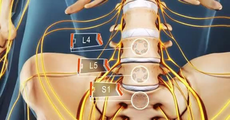 Gai đôi cột sống S1 là một dạng dị tật bẩm sinh ở trẻ sơ sinh