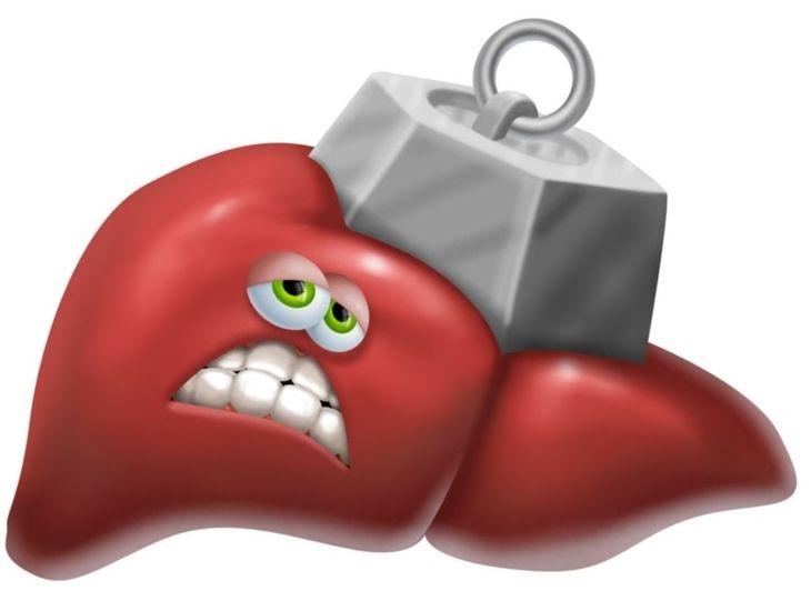 Gan bị nhiễm độc là tình trạng tổn thương và viêm nhiễm nghiêm trọng