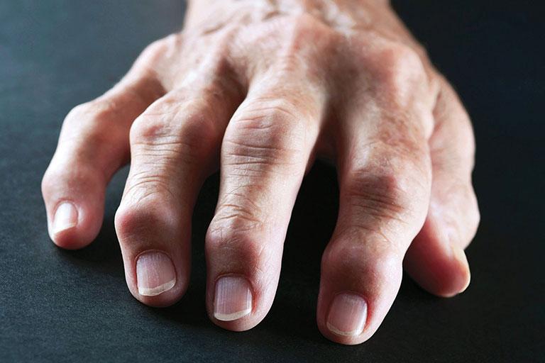 Hạt dưới da trong viêm khớp dạng thấp
