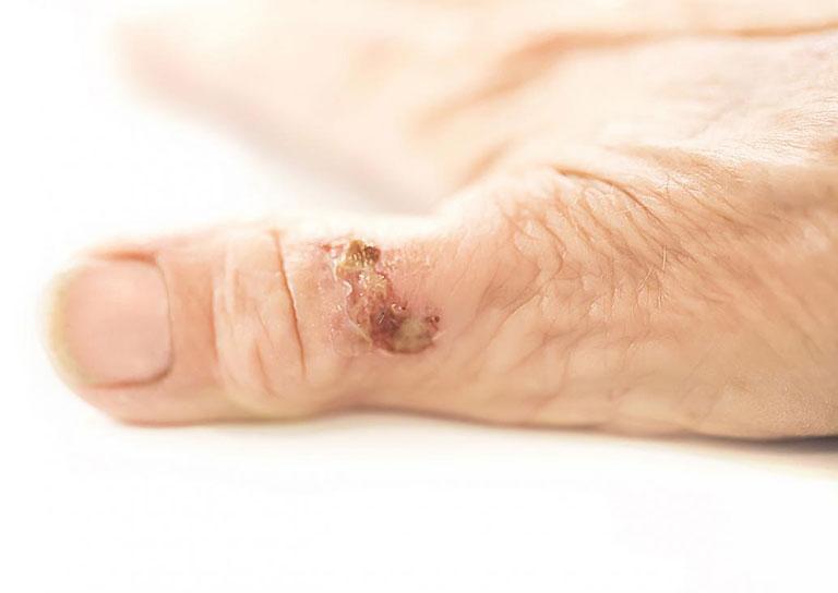 Hạt dưới da ở bệnh viêm khớp dạng thấp