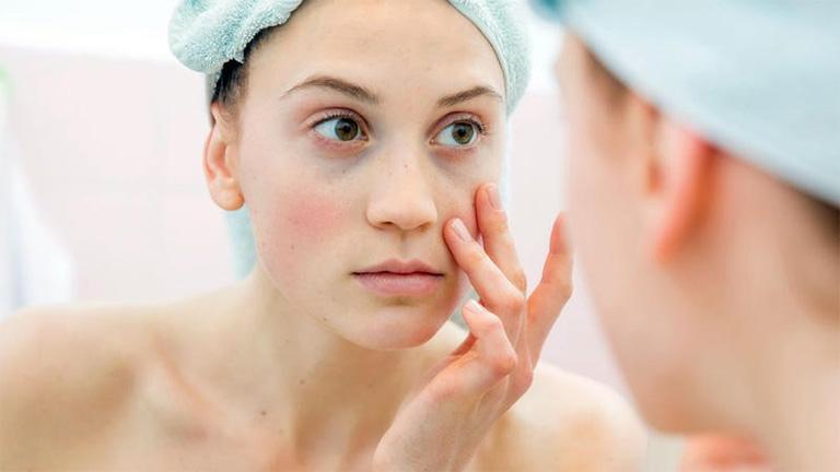 Cần ngừng sử dụng kem oxy 10 trị mụn ngay nếu thấy da có triệu chứng bất thường