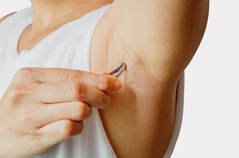 Làm sạch lông nách không đúng cách cũng là một trong những nguyên nhân làm gia tăng nguy cơ hình thành nhọt