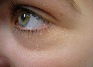 mụn thịt quanh mắt