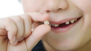 Những lưu ý khi nhổ răng sữa tại nhà cho trẻ