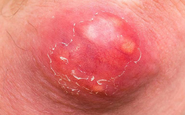 Mụn nhọt độc có kích thước khá lớn và nguy hiểm hơn so với mụn nhọt thông thường
