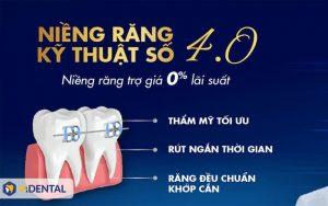 Hỗ trợ trả góp niềng răng tại Vidental