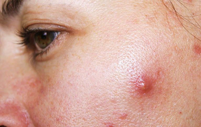 Lỗ chân lông ở da mặt hay bị bít tác do dầu nhờn và tế bào chết nên dễ hình thành nên mụn nhọt