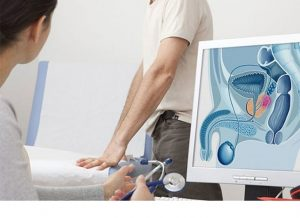Phác đồ điều trị viêm tiền liệt tuyến