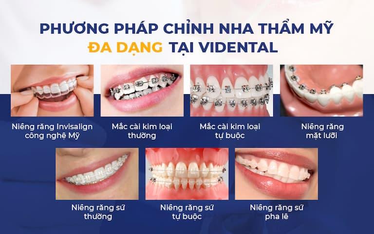 """Vidental """"có đủ cả"""" mọi phương pháp niềng răng"""