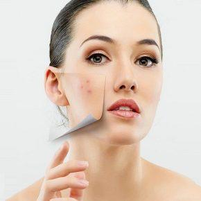 Quy trình chăm sóc da mụn với 9 bước cơ bản nhất