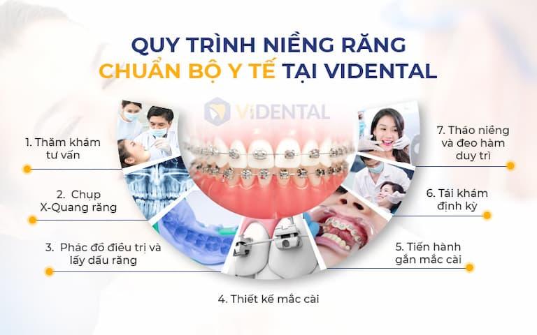 Quy trình niềng răng CHUẨN QUỐC TẾ tại Vidental