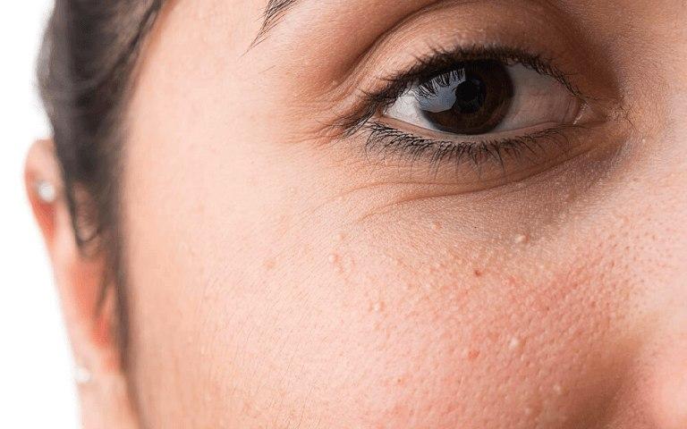 Chữa mụn thịt quanh mắt bằng mẹo dân gian sẽ giúp chị em lấy lại làn da mịn màng và khỏe mạnh