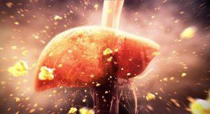 Viêm gan nhiễm mỡ có nguy hiểm không? Điều trị như thế nào?
