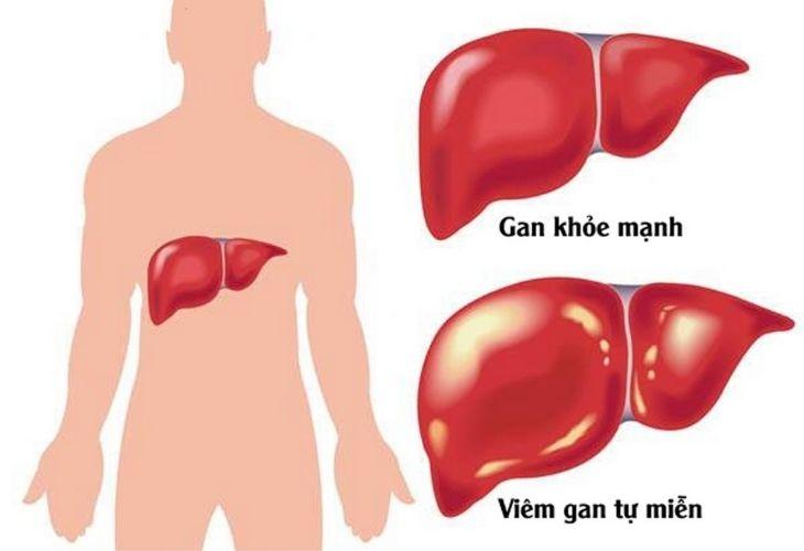 Viêm gan tự miễn là bệnh lý hiếm gặp