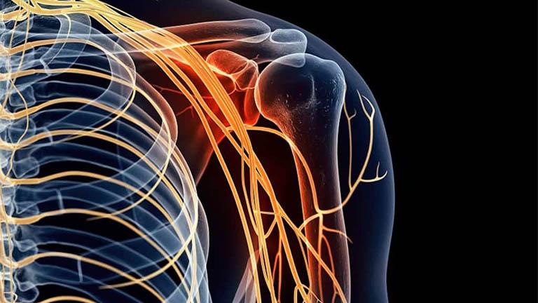 Đau dây thần kinh vai gáy là tình trạng thường gặp ở người lớn tuổi và người có tư thế vận động xấu