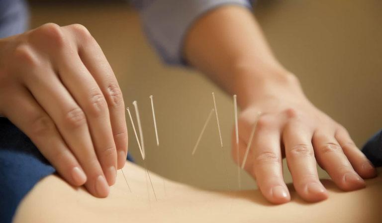châm cứu là phương pháp điều trị đau thần kinh tọa bằng đông y