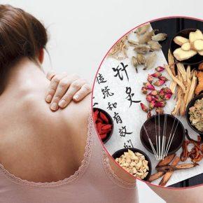 Điều trị đau vai gáy bằng y học cổ truyền