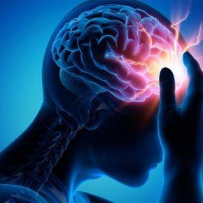 đột quỵ xuất huyết não