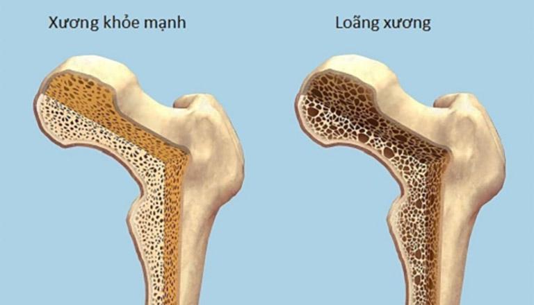 Loãng xương khiến mật độ xương giảm thấp, xương khớp dần trở nên suy yếu