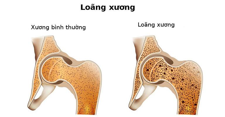 Loãng xương khiến xương khớp dần trở nên suy yếu và dễ tổn thương
