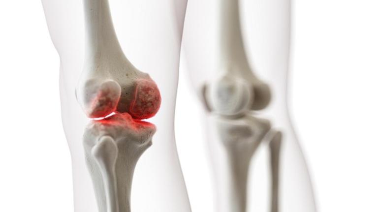Thoái hóa khớp gối xảy ra khi sụn khớp bị hao mòn dần và hình thành nên gai xương tại đây