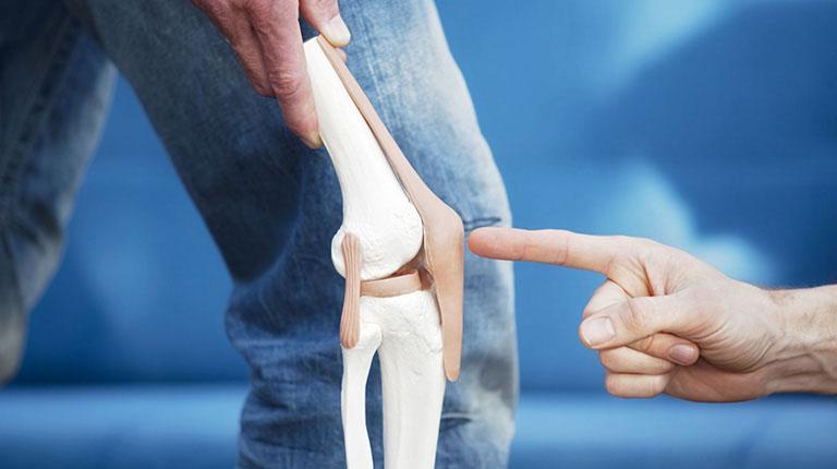 Cúng khớp cũng là một trong những triệu chứng của bệnh thoái hóa khớp