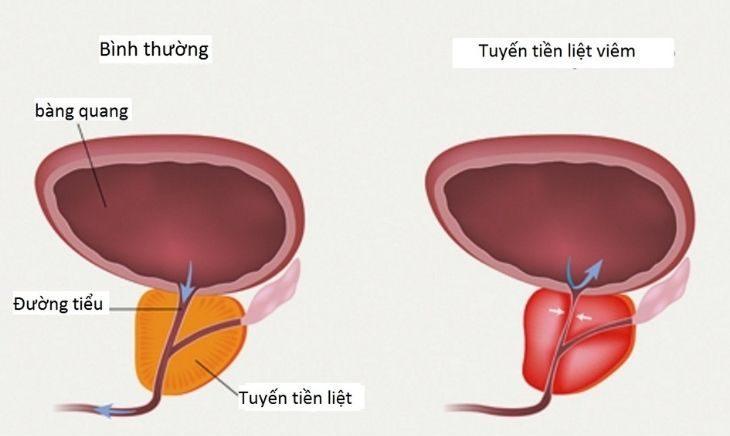 Viêm tuyến tiền liệt gây vô sinh khi tinh trùng bị trộn lẫn với các tế bào bạch cầu