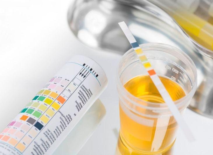 Xét nghiệm nước tiểu là phương pháp chẩn đoán viêm tuyến tiền tiệt