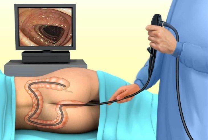 Siêu âm trực tràng giúp phát hiện những bất thường ở tuyến tiền liệt