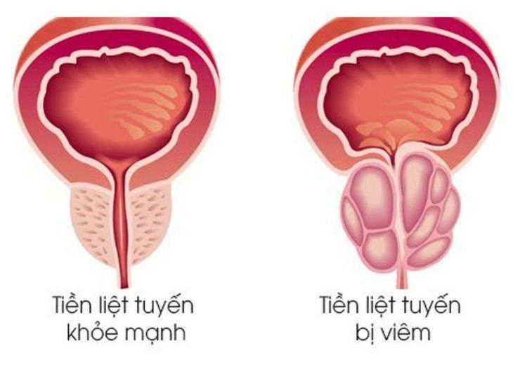 Dựa vào kết quả xét nghiệm bác sĩ sẽ chẩn đoán nguyên nhân gây viêm tuyến tiền liệt