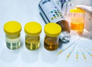 xét nghiệm viêm tuyến tiền liệt